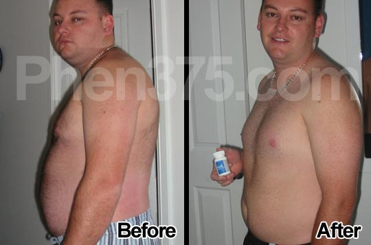 jensen-phen375-real-user-before-and-after-image